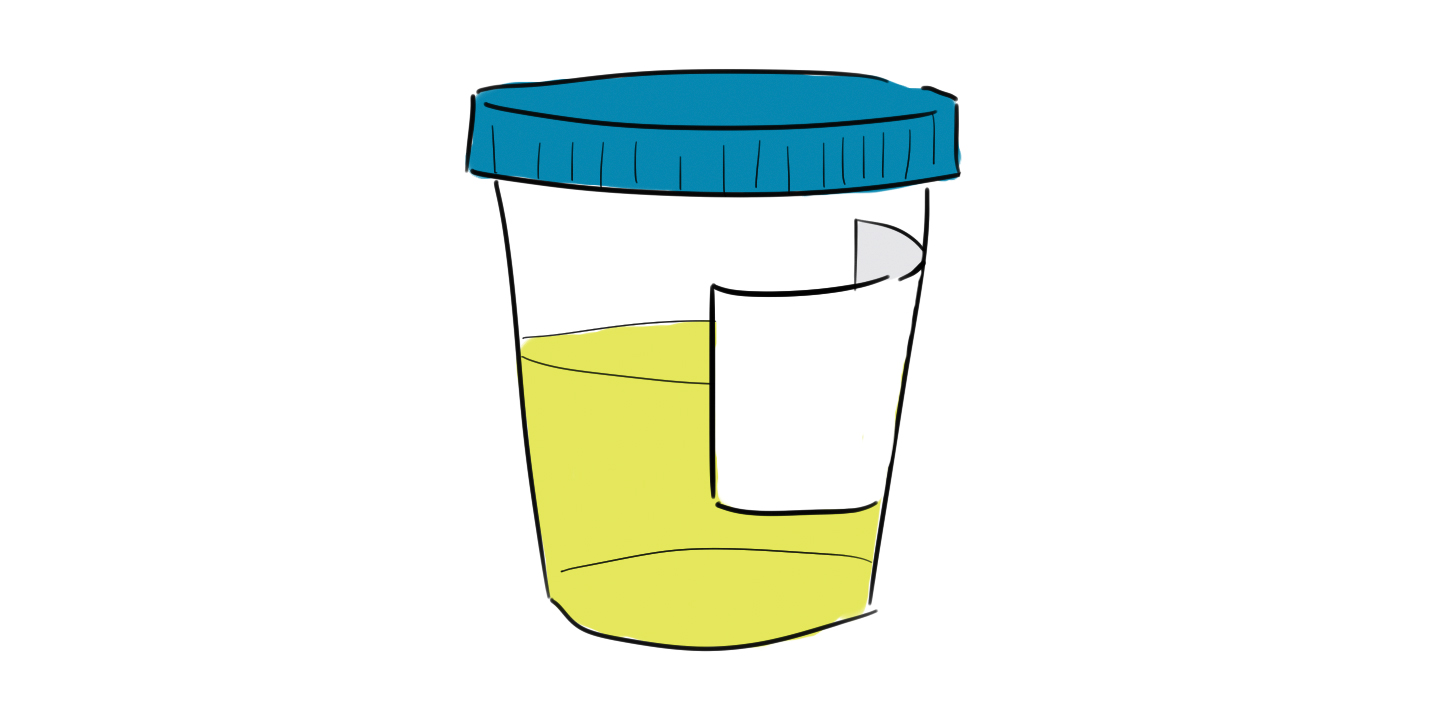 Want An Sti Test On Campus Urine Luck The Fulcrum